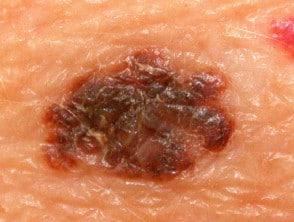 skin checks services